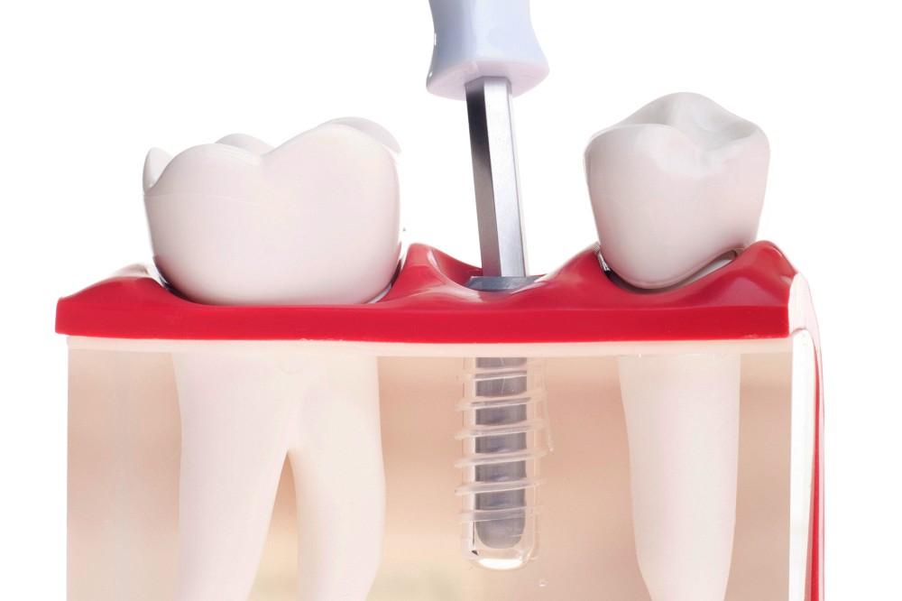 zubní implantát - model