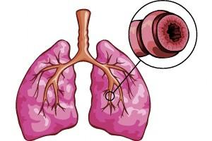 plice-prudusky-grafika, bronchiektiázie