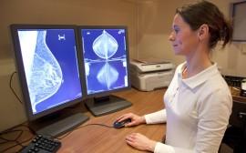 snímky z mamografu (ilustrační)