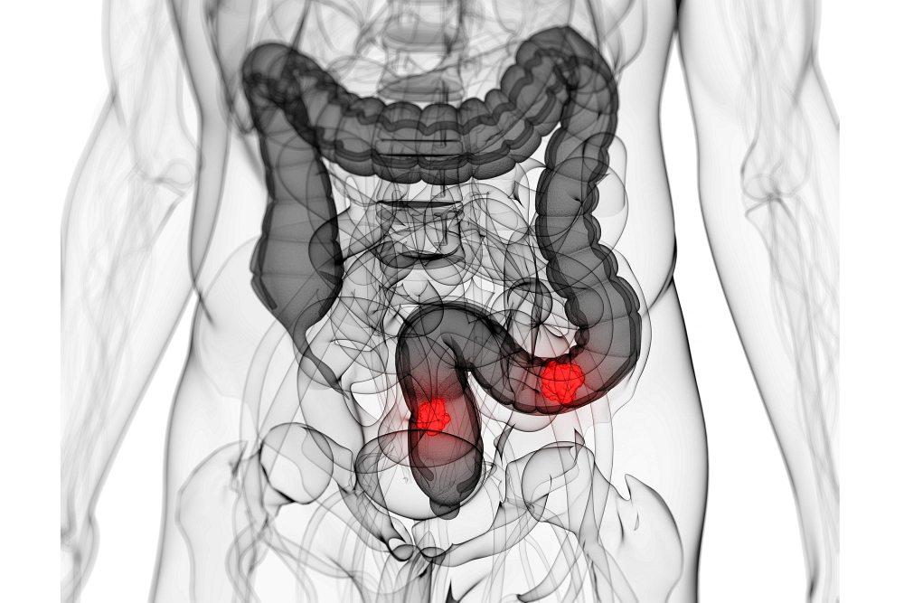 IBD rakovina tlustého střeva