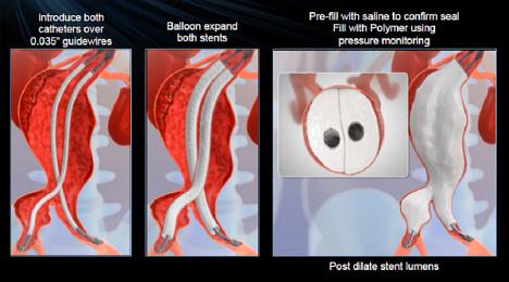 Nová metoda léčby výdutě aorty