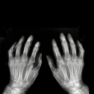 rentgen rukou loupání prstů