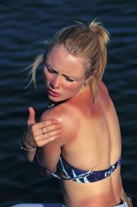 žena se spálenými zády