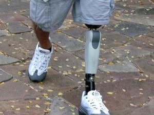 protetická noha