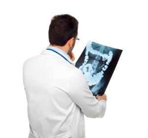 Lékař kontroluje recidivu onemocnění střev