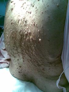 Tuberózní skleróza postižení kůže