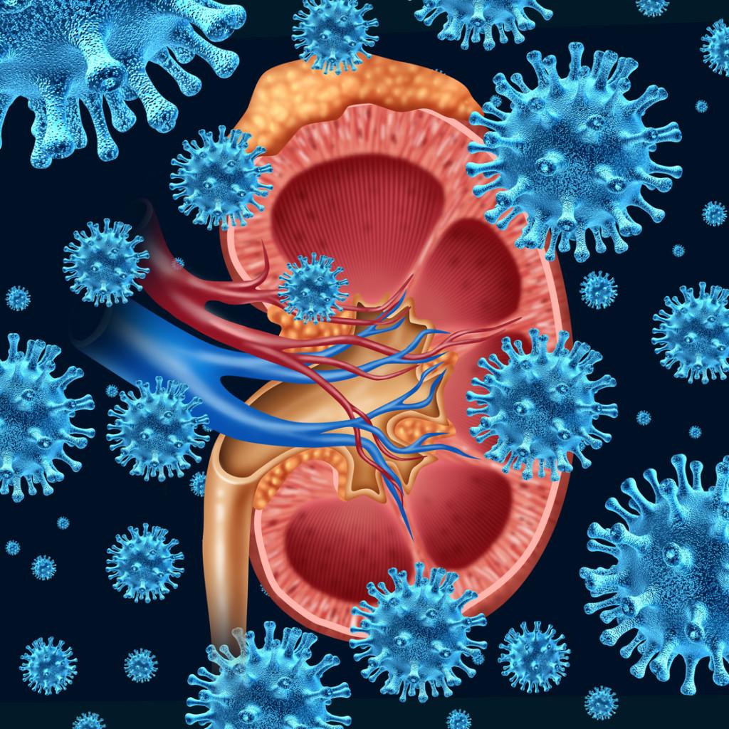 infekce močových cest